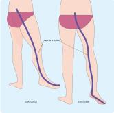 trajet-nerf-sciatique